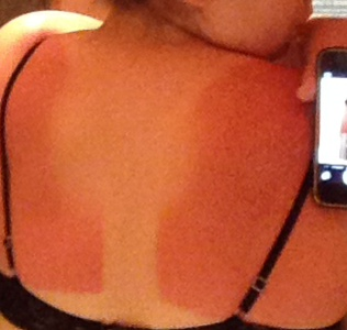 Sunscreen is important, guys.